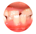 condition-teeth-crossbite