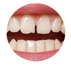 condition-teeth-spacing-2