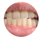 condition-teeth-underbite