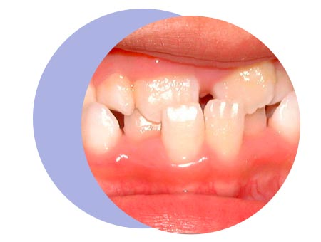teeth-condition-page-crossbite