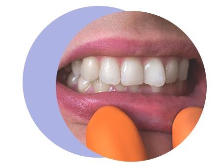 teeth-condition-page-overbite