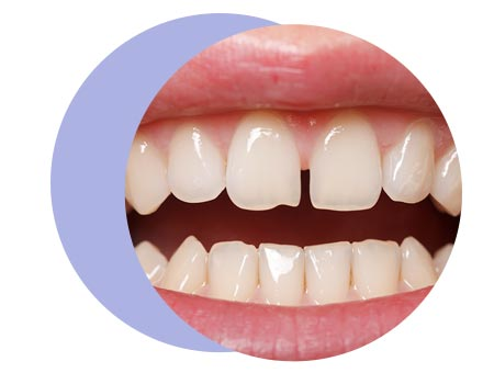 teeth-condition-page-spacing