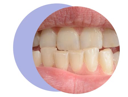 teeth-condition-page-underbite